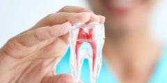 clinica-gio-dental-endodoncia-1