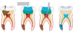 clinica-gio-dental-endodoncia-3